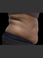 Before Photo Body Contouring Treatment #120 - ZALEA Before & After