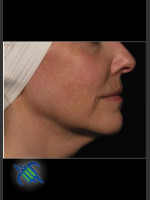 After Photo Right Side Facial Laxity with Profound - ZALEA Before & After
