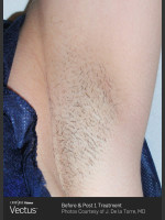 Before Photo Hair Removal of Under Arms with Vectus - ZALEA Before & After