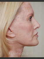 After Photo Rhytidectomy (Facelift) 1753 Side View - ZALEA Before & After