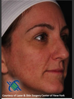 After Photo Right Side Full Face Rejuvenation - ZALEA Before & After