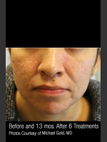After Photo Treatment of Cystic Acne #300 - ZALEA Before & After