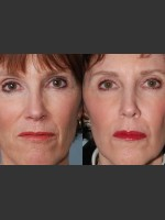 Before Photo Single treatment of fully ablative  Laser Resurfacing - Prejuvenation Before & After