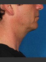 After Photo Kybella Treatment 47 Year Old Male - Prejuvenation Before & After