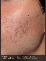 Before Photo Acne Scaring Treatment with Picosure - ZALEA Before & After