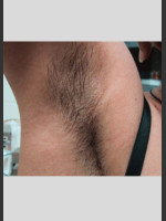 Before Photo Treatment of Underarms with Gentle Laser - ZALEA Before & After