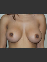 After Photo Silicone Breast Augmentation - Prejuvenation Before & After