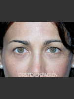 Before Photo Blepharoplasty - Patient 2 - ZALEA Before & After
