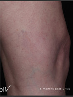 After Photo Leg Vein Clearance Using Excel V - ZALEA Before & After