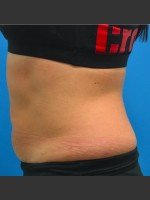 After Photo SculpSure Abdomen - ZALEA Before & After