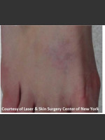After Photo Treatment of Foot Tattoo - Prejuvenation Before & After