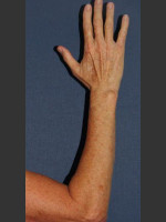 After Photo Brown Spot Reduction on Arm - ZALEA Before & After