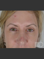 Before Photo Upper Blepharoplasty - ZALEA Before & After