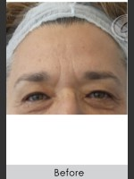 Before Photo Dysport and Filler for Forehead Etched Lines - ZALEA Before & After