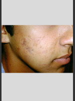 After Photo elos Technology AC for Acne Treatment - ZALEA Before & After