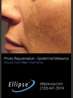 Before Photo Treatment of Pigmentation and Melasma  - ZALEA Before & After