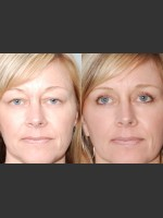 After Photo Two women with Laser Eyelid Blepharoplasty - ZALEA Before & After
