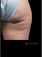 Before Photo CoolSculpting on Woman's Outer Thigh - ZALEA Before & After