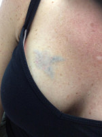 After Photo Tattoo Removal  - ZALEA Before & After