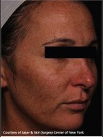 Before Photo Treatment of Facial Pigmentation - Prejuvenation Before & After