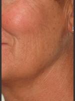 Before Photo Infini Rhytides Treatment #16 - ZALEA Before & After