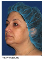 Before Photo Alastin Skincare Procedure Enhancement System - ZALEA Before & After