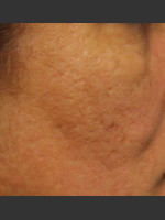 After Photo Infini Acne Scar Treatment #12 - ZALEA Before & After