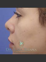 After Photo Rhinoplasty - ZALEA Before & After