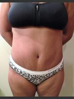 After Photo Dr. Palmer Tummy Tuck 01  - Prejuvenation Before & After