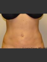 After Photo Liposuction of Abdomen 8087 - Prejuvenation Before & After