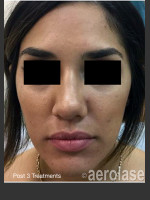 After Photo NeoClear by Aerolase Acne Treatment - ZALEA Before & After