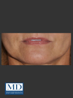 Before Photo Lip Filler 133 - ZALEA Before & After