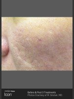 After Photo Acne Scaring on the Cheeks - Prejuvenation Before & After