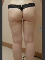After Photo Dr. Langdon Liposuction  - ZALEA Before & After