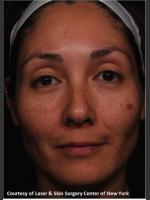 Before Photo Treatment of Melasma - Prejuvenation Before & After
