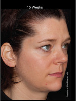 After Photo Hyperpigmentation - Professional Peel + Homecare - ZALEA Before & After