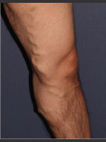 Before Photo Non-surgical Leg Vein Treatment - ZALEA Before & After