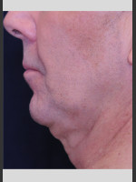 Before Photo Profound Contour Treatment of Neck - ZALEA Before & After