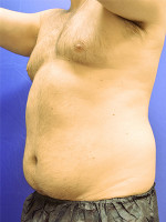 Before Photo Liposuction Case #1 - Prejuvenation Before & After