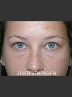 Before Photo Lower Eyelid Fat Removal - Patient 4 - Prejuvenation Before & After