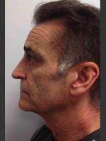 Before Photo Infini Rhytides Treatment #21 - ZALEA Before & After
