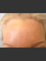 After Photo Before & After Botox - ZALEA Before & After
