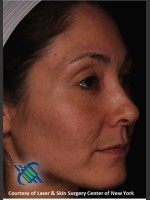 After Photo Facial Skin Rejuvenation of Face - ZALEA Before & After