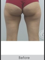 Before Photo CoolSculpting+ for Banana Roll (Under Buttock Roll) - Prejuvenation Before & After