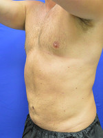 After Photo Liposuction Case #1 - Prejuvenation Before & After