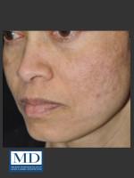 After Photo Melasma Face Treatment 117 - Prejuvenation Before & After