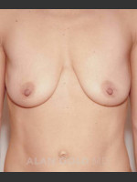 Before Photo Mastopexy and Augmentation 515 - ZALEA Before & After