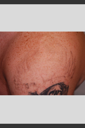 After Photo for PicoWay Tattoo Removal on Shoulder  -  - Prejuvenation