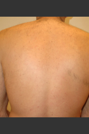 After Photo for Laser Hair Removal   - Lawrence Bass MD - ZALEA Before & After