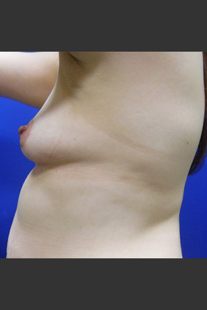 Before Photo for Breast Augmentation Case #1   - Lawrence Bass MD - ZALEA Before & After